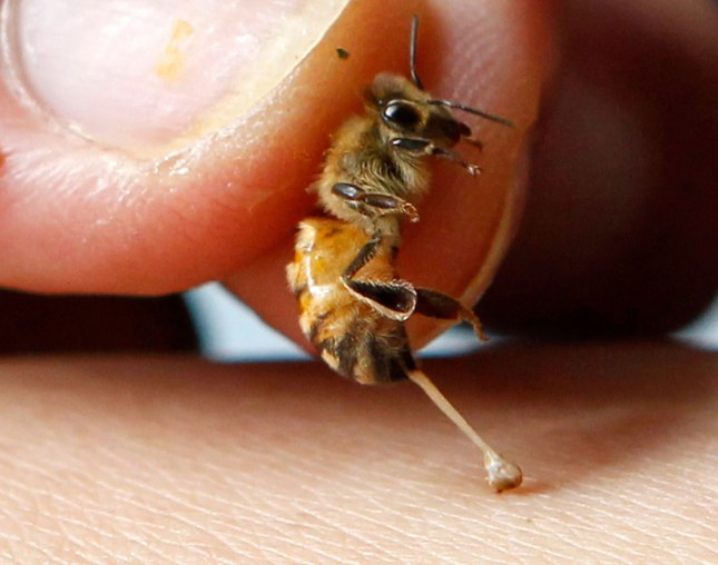 bee-sting-therapy-hp-orig